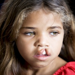 a child whose life has been changed by Operation Smile; photo courtesy of Operation Smile