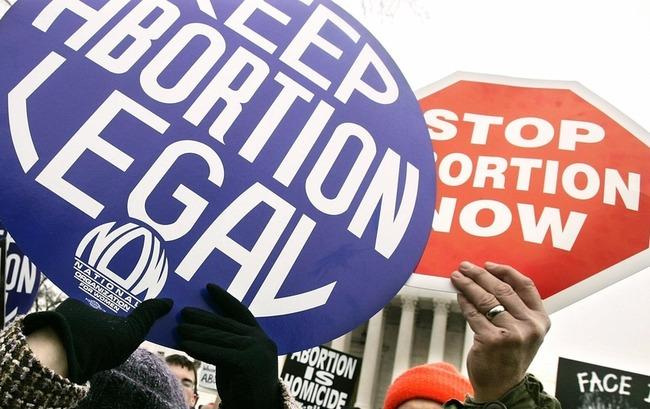 Abortion continues to be a heated debate in the United States.