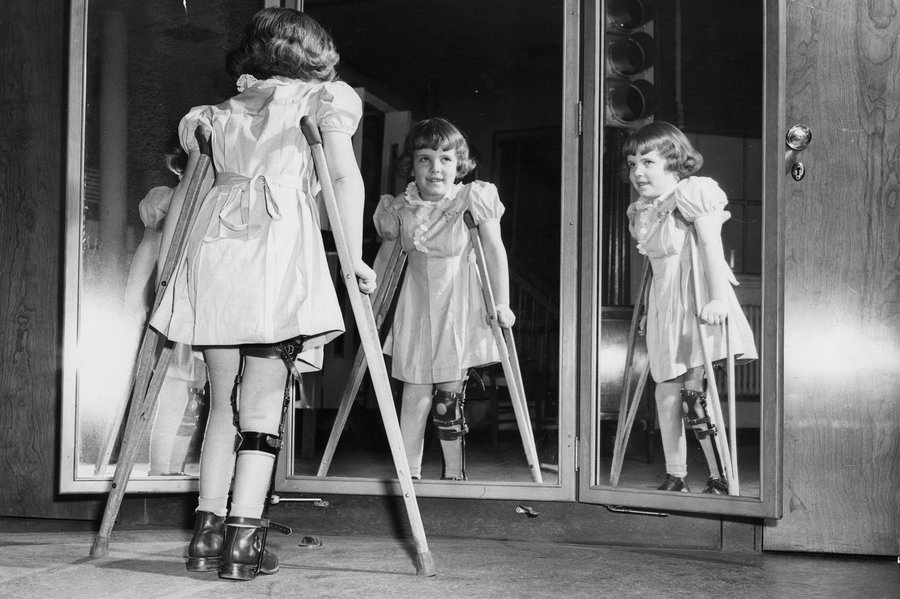 A young girl recovering from polio and standing with crutches.