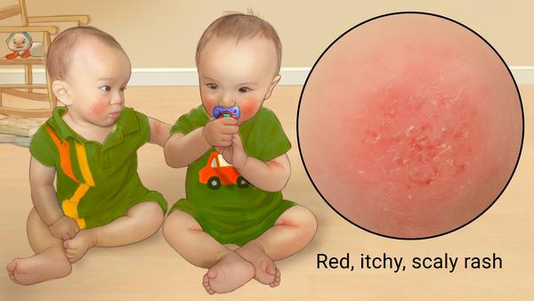 An image of babies dealing with atopic dermatitis, a condition that has a reported 3 million cases each year.